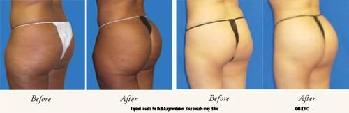 Buttock Augmentatioin
