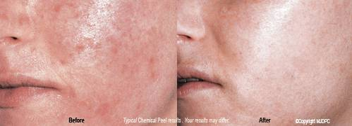 Chemical peels, before and after, sagging skin, aging skin, TCA peel, Mini peel, dark blotches, melasma, enlarged pores, derma peeling, Dallas, DFW, Plano, Frisco, McKinney, Allen, Addison, Texas