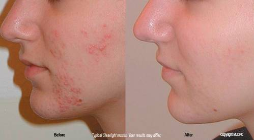 Acne Before and After Birth Control Pills