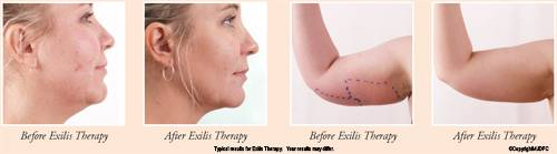 Exilis Therapy