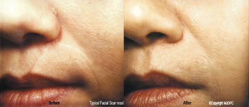 Facial Scars, removing facials scars, scar removal surgery, Dermatologist, Cosmetic Surgery, Skin Care, Laser Surgery, Anthony Caglia, Dermatology, Dallas, Richardson, Texas, Oklahoma, New Mexico, Skin, Skin Care Products, Hair Removal, Acne, Acne Acne Scarring