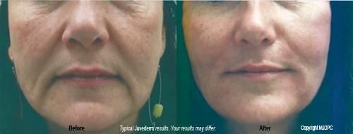 Juvederm – Redmond WA – Dr  James Petrin - petrindermatology com