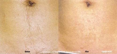 Laser Hair Removal Dermatologist Fairfax Virginia Rockville