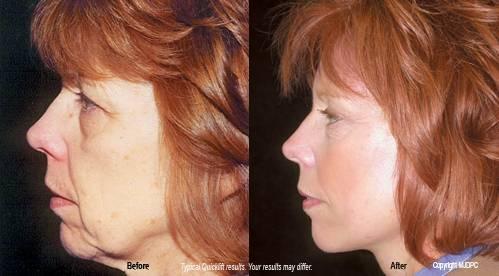 Quick lift facial surgery