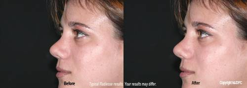 Radiesse dermal filler before and after 1. - Plano, Richardson, Frisco, Allen, Mckinney.