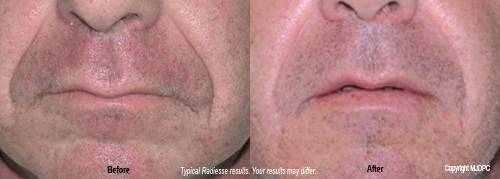 Radiesse dermal filler before and after 2. - Plano, Richardson, Frisco, Allen, Mckinney.