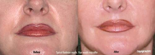 Radiesse dermal filler before and after 3. - Plano, Richardson, Frisco, Allen, Mckinney.