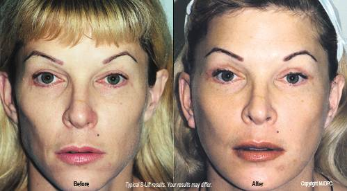 What can I expect in terms of recovery time from facelift