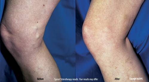 Sclerotherapy | Hughes Surgical Arts | Lowell Hughes, MD