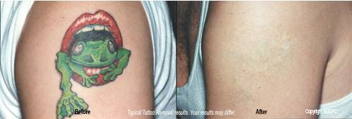 Removal Tattoos on Tattoo Removal Texas   Images Of Tattoosimages Of Tattoos