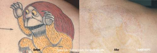 Removal Tattoos on And Infrared Treatments Compare To Other Methods Of Tattoo Removal