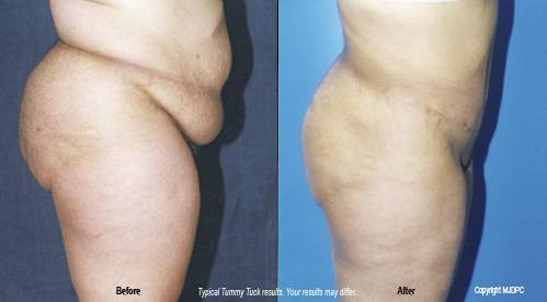 Tummy Tuck Abdominoplasty Hays Ks Dr Kirk Potter