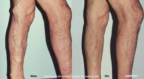 How to Cover Up Spider Veins or Varicose Veins