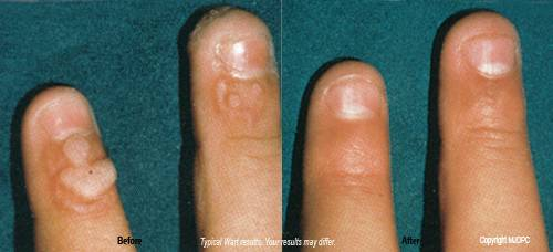 warts and wart removal, Before and after, chemocautery, skin care, laser center, laser wart removal, mole removal, skin tag removal, Plano, Dallas, DFW, Frisco, Allen, McKinney, Richardson, Texas