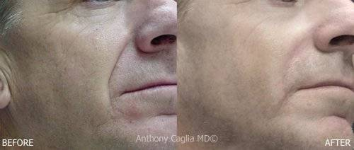 Artefill dermal filler before and after, ArteFill results, artefill dermal filler, artefill in cheeks, facial filler, facial contouring, permanent filler, facial filler, Skin Care, cosmetic filler, Dermatology, Dallas,Southlake,Highland Park, north dallas, Richardson, Texas, Oklahoma, Skin