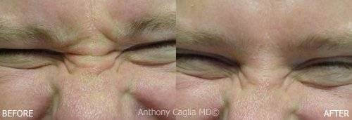 Botox in McKinney, before and after, nose bridge, forehead lines, wrinkles
