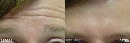 Botox in Plano, before and after, forehead furrows, Botox injection, Botox treatment Dallas, wrinkles gone