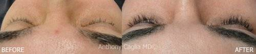Eyelash regrowth,Latisse results, Latisse, eyelashes, longer, fuller, thicker, Latisse treatments, Dallas, Plano, Frisco, DFW, Allen, Richardson, Texas