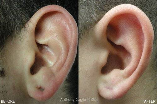 Earlobe repair, earlobe rejuvenation, torn earlobe, before and after - Dallas, Allen, Plano McKinney