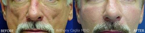 Sculptra before and after.