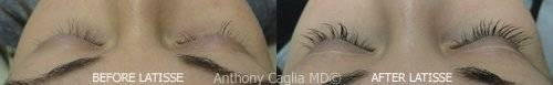 Latisse results, Latisse, eyelashes, longer, fuller, thicker, Latisse treatments, Dallas, Plano, Frisco, DFW, Allen, Richardson, Texas