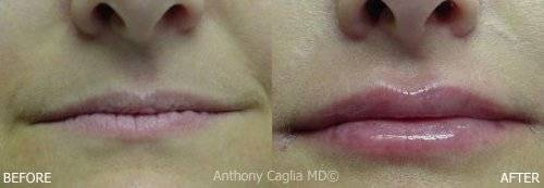 Lip fiLip Augmentation, Juvederm, Restylane, Perlane, Juvederm XC, Perlane-L, Restylane-L, Wrinkle Fillers, anesthetic, lip filler, lip enlargement, Dermatologist, enhanced lips, Dallas, DFW, Plano, Frisco, Allen, McKinney, Addison, Texas