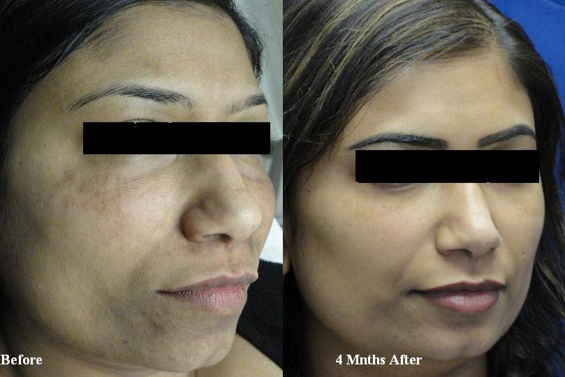Microdermabrasion Dallas
