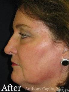 fractional facial resurfacing after - Dallas, Richardson, Plano, McKinney