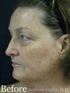 fractional facial resurfacing before - Dallas, Richardson, Plano, McKinney