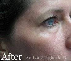 facial resurfacing, crows feet wrinkles, after - Richardson, Plano, Dallas, Allen