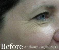 facial resurfacing, crows feet wrinkles, before - Richardson, Plano, Dallas, Allen