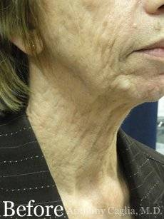 Co2 laser resurfacing, neck wrinkles before - Dallas, Plano, Allen, Frisco tx