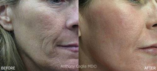 Skin resurfacing, CO2 Laser skin resurfacing, before and after. Allen.