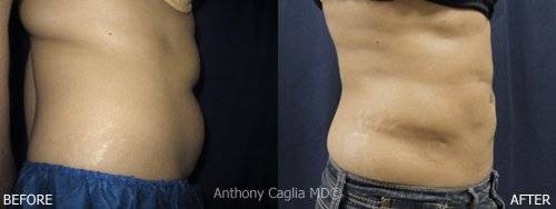 SlimLipo Laser Liposuction before and after 3 - Dallas Texas.