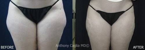SlimLipo Laser Liposuction before and after 1 - Dallas Texas.