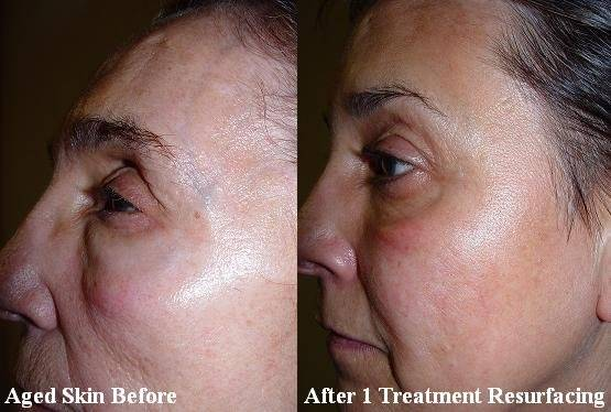 Aging Skin Before and After Resurfacing