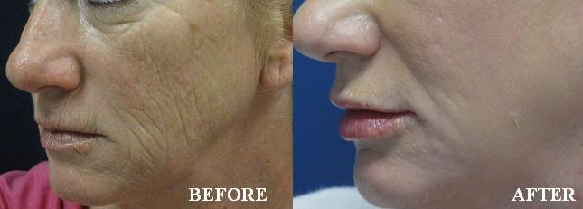 Fractional CO2 Resurfacing