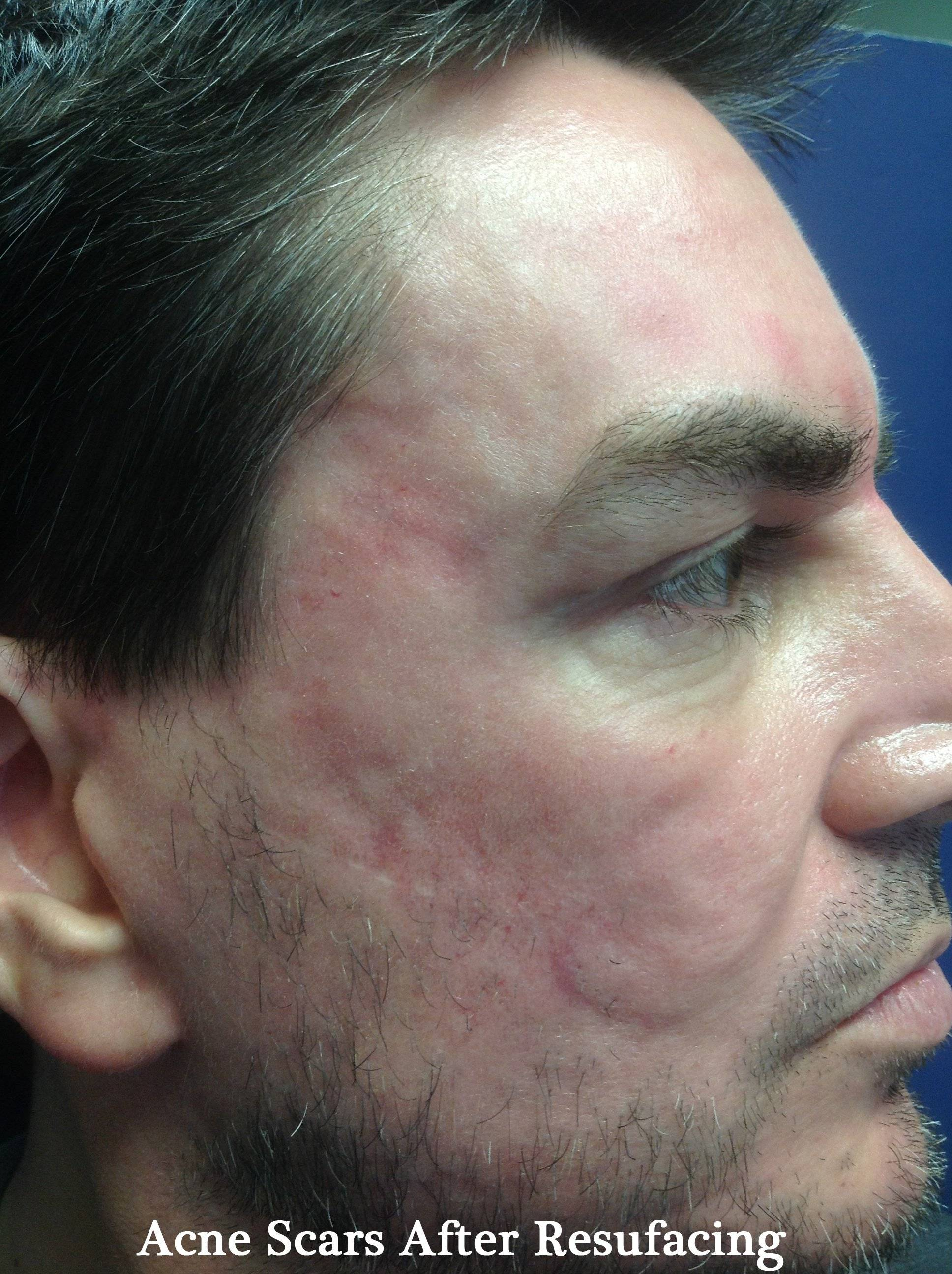 acne scarring after resurfacing