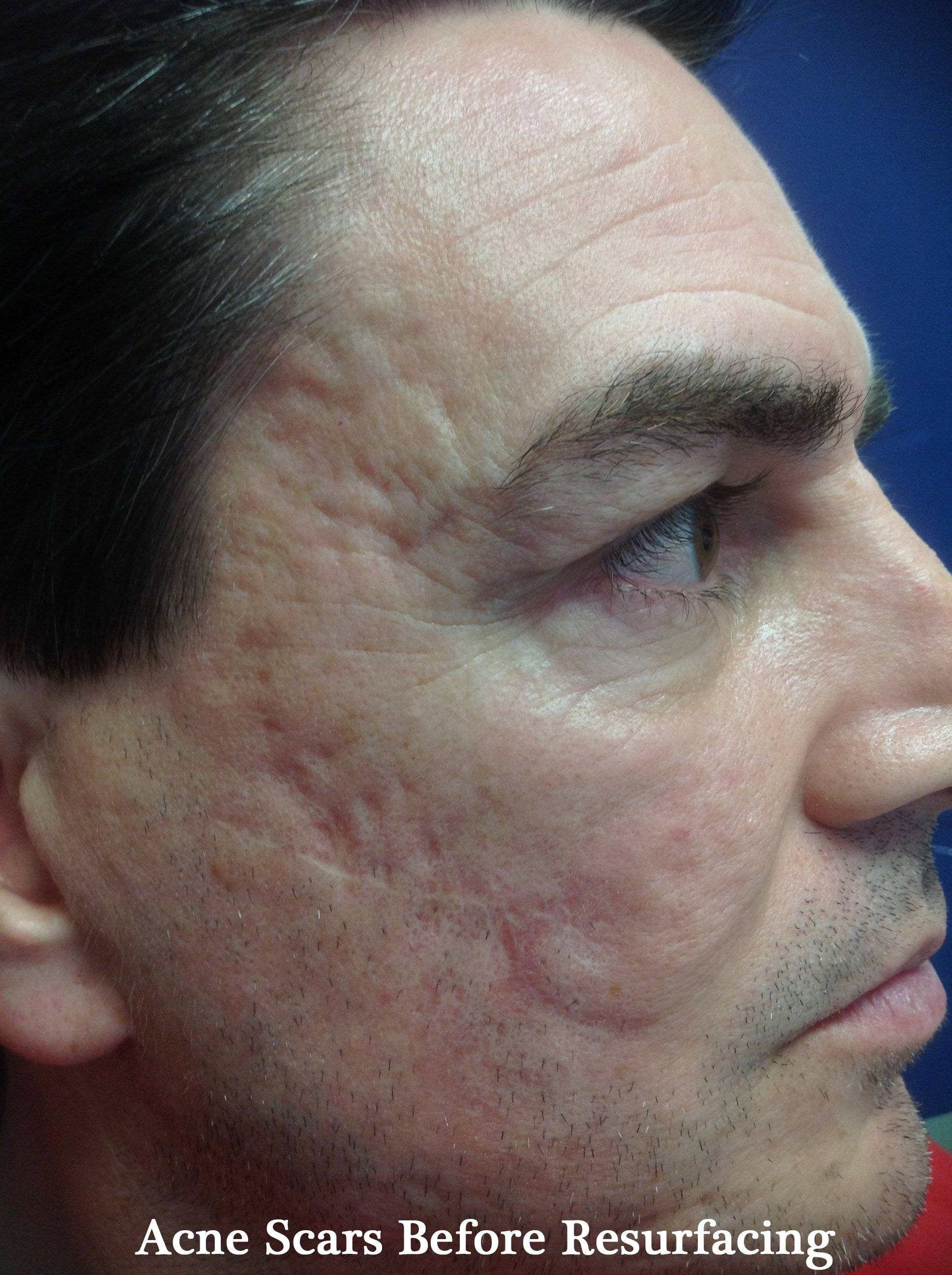 acne scarring before resurfacing