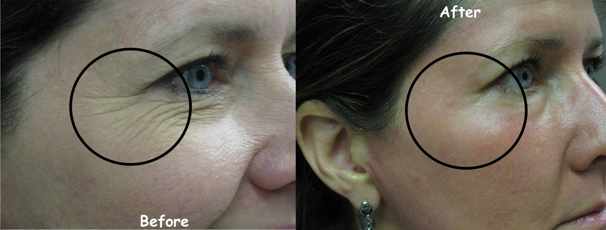 CO2 Resurfacing Face Before and After