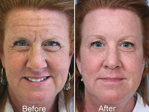 Botox used to eliminate forehead wrinkles.