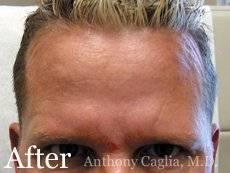 Botox forehead wrinkles after - Dallas, Allen, Shouthlake, Richardson