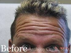 Botox forehead wrinkles before - Dallas, Allen, Shouthlake, Richardson