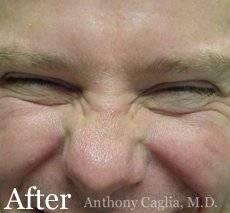 Botox face wrinkle remover after - Allen, Plano, Richardson, Fricso