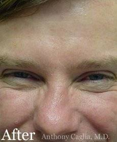 Botox forehead wrinkle remover after - Allen, Plano, McKinney, Dallas
