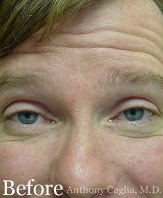 Botox forehead wrinkle remover before - Allen, Plano, McKinney, Dallas