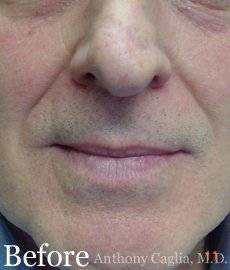 Nasal Labial treatment, Wrinkle Treatment, smile line treatment, dermal filler ber - Dallas, Richardson, Plano, Allen