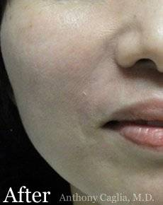 Smile line filler, wrinkle treatment, Nasal Labial treatment, dermal filler after - Allen, McKinney, Frisco, Garland