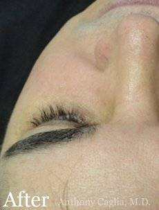 Latisse eyelash regrowth after - Dallas, Plano, Richardson, Allen