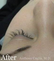 Latisse eyelash regrowth after - Plano, Allen, McKinney, Frisco